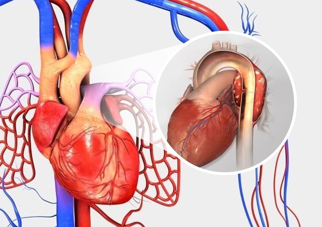 Tratamento de Aneurisma da Aorta Torácica