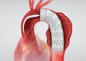 Cirurgia de Aorta Endovascular